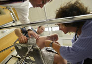 """In this Oct. 25, 2012 photo, Suzanne Finucane, a physical therapist assistant, right, and prothetist Robert Lipschutz, top, attach electrodes to Zac Vawter's leg as he is fitted with an experimental """"bionic"""" leg at the Rehabilitation Institute of Chicago. After losing his right leg in a motorcycle accident, the 31-year-old software engineer signed up to become a research subject, helping test a trailblazing prosthetic leg that's controlled by his thoughts. He will put this leg to the ultimate test Sunday, Nov. 4 when he attempts to climb 103 flights of stairs to the top of Chicago's Willis Tower, one of the world's tallest skyscrapers. (AP Photo/Brian Kersey)"""