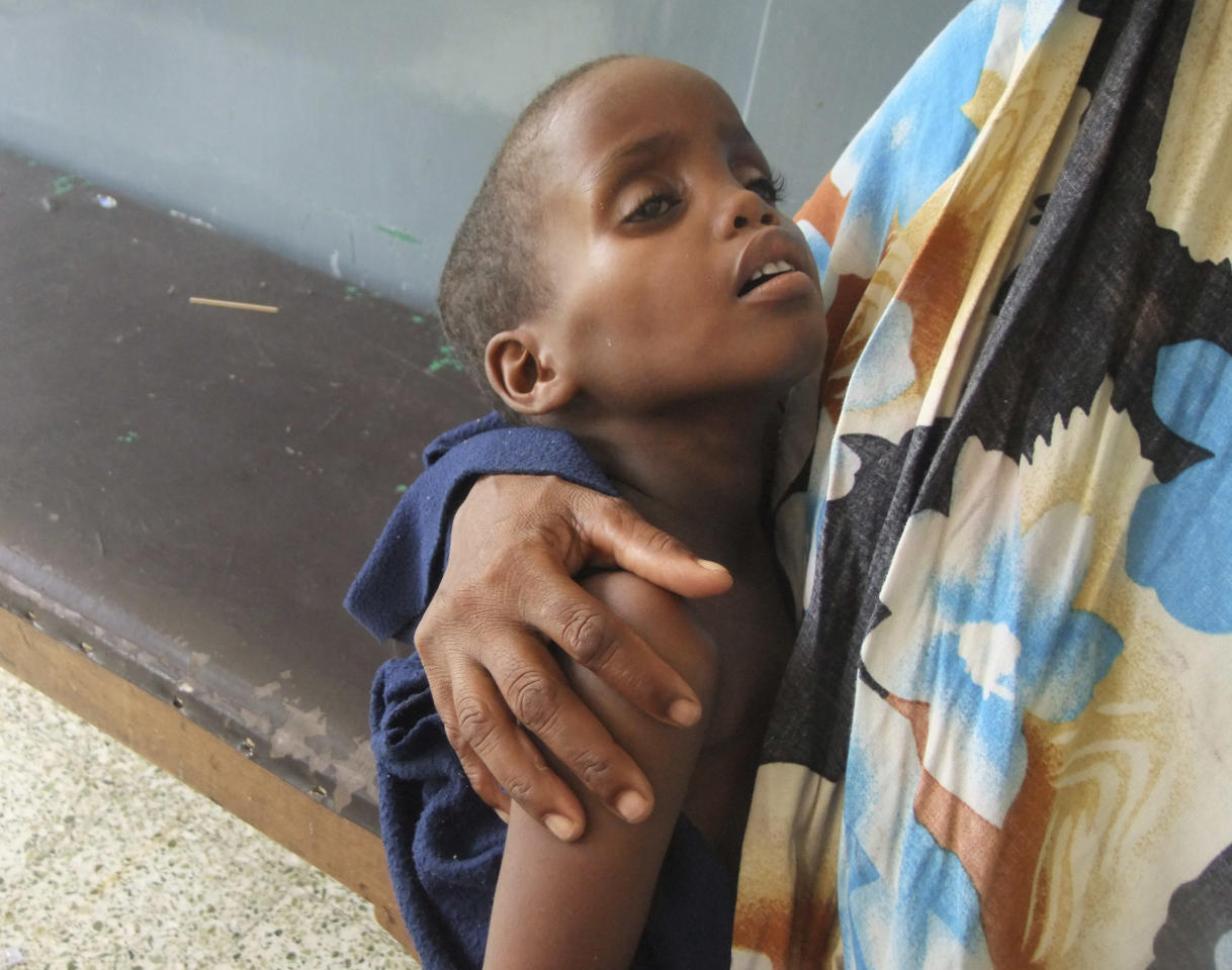 A malnourished child from southern Somalia in Banadir hospital in Mogadishu, Somalia, Monday, Aug 1, 2011.Tens of thousands of famine-stricken Somali refugees were cold and drenched after torrential rains overnight pounded their makeshift structures in the capital, Mogadishu. Rains are needed to plant crops and alleviate the drought that is causing famine in Somalia but on Saturday night the rains added to the misery of refugees who live in structures made of sticks and pieces of cloth. (AP Photo/Farah Abdi Warsameh)