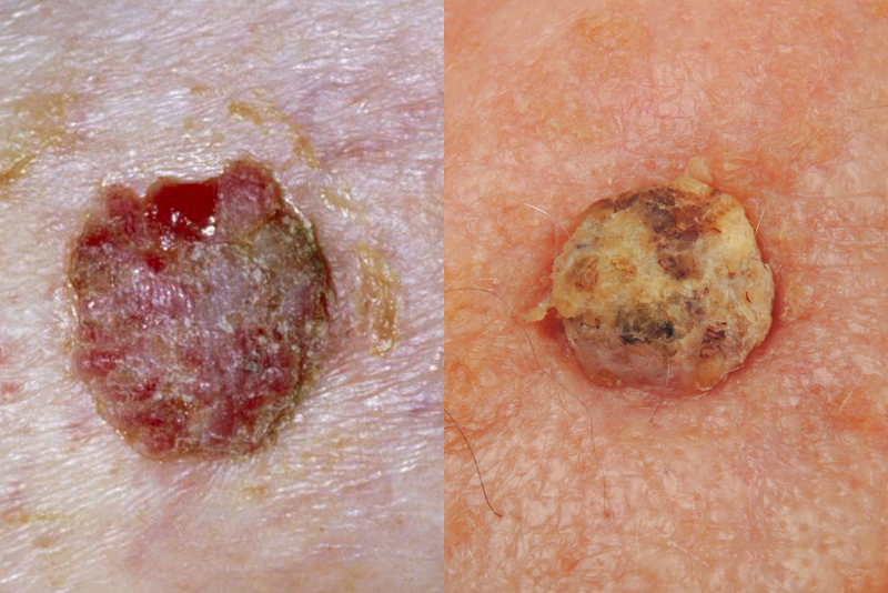 """<p>Squamous cell carcinoma is the second most common type of skin cancer, accounting for about two out of every 10 cases, the ACS says. These cancers form in squamous cells, which are the flat cells that constantly shed in the outer part of your epidermis.</p><p>Squamous cell carcinomas commonly appear on sun-exposed body parts, including the face, ears, neck, lips, and back of the hands. Although this type of skin cancer can spread to other parts of the body, this is not typical and squamous cell carcinoma is easy to treat when spotted early.</p><p><strong>Squamous cell carcinoma symptoms: </strong>Similar to basal cell carcinoma, squamous cell carcinomas tend to manifest as a pink or red bump or patch that won't go away, Dr. George explains. However, they're not usually pearly or shiny.</p><p>These skin cancers can also grow as a flat patch or become larger and nodular, adds <a href=""""https://www.mskcc.org/cancer-care/doctors/anthony-rossi"""" target=""""_blank"""">Anthony Rossi, MD</a>, board-certified dermatologist at Memorial Sloan Kettering Cancer Center. Here are other telltale signs to look out for:</p><ul><li>Rough or scaly patches</li><li>Raised bumps that may have a lower area in the center</li><li>Open sores or scabs that don't heal or heal and come back</li><li>Growths that look like warts</li><li>Itching, bleeding, crusting, or pain</li></ul>"""