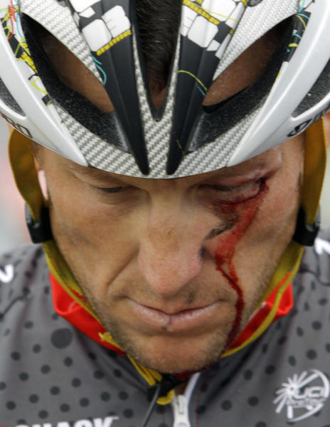 FILE - In this May 20, 2010 file photo, Lance Armstrong bleeds from a cut under his left eye after crashing during the fifth stage of the Tour of California cycling race in the outskirts of Visalia, Calif. The dirty past of the Tour de France came back on Friday, June 28, 2013, to haunt the 100th edition of cycling's showcase race, with Lance Armstrong telling a newspaper he couldn't have won without doping. (AP Photo/Marcio Jose Sanchez, File)