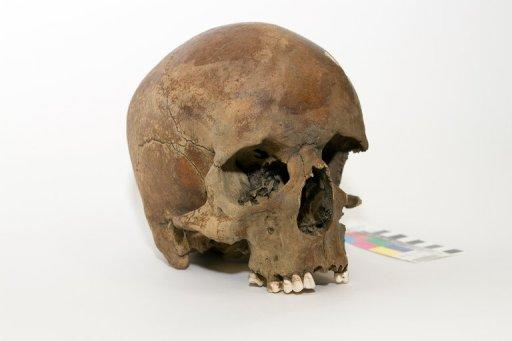 A centuries-old skull found in northern New South Wales in late 2011, in Canberra