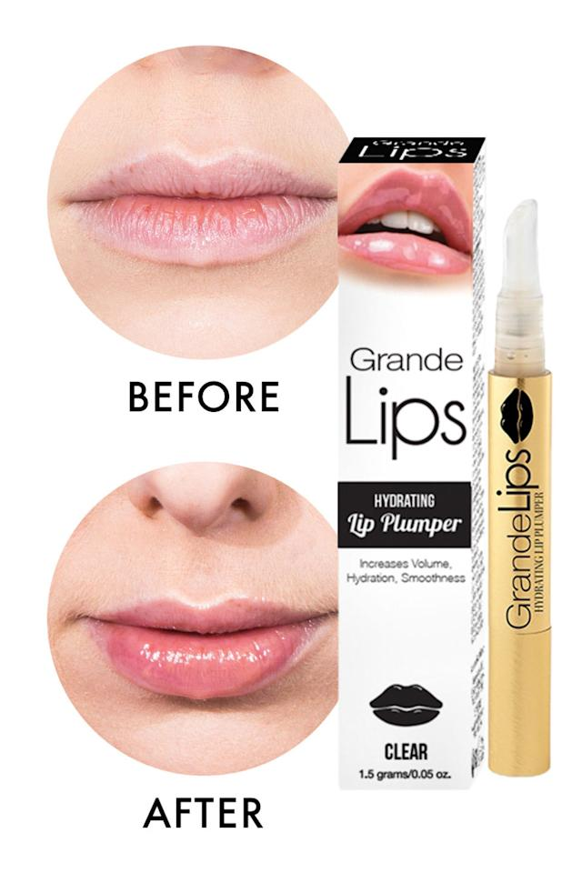 Can Lip Plumpers Do The Work Of Lip Injections