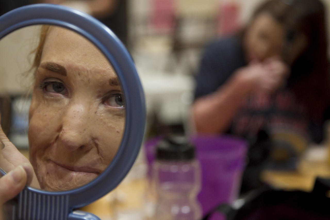 In this June 22, 2012, photo, Larisa Hertz looks in the mirror as she puts on make-up for a closing ceremony at the Angel Faces retreat in Corona, Calif., Friday, June 22, 2012. Angel Faces is an annual retreat for young girls with severe burns or facial disfigurement that focuses on psychological healing through group counseling, role-playing, art therapy and workshops that teach coping skills. (AP Photo/Jae C. Hong)
