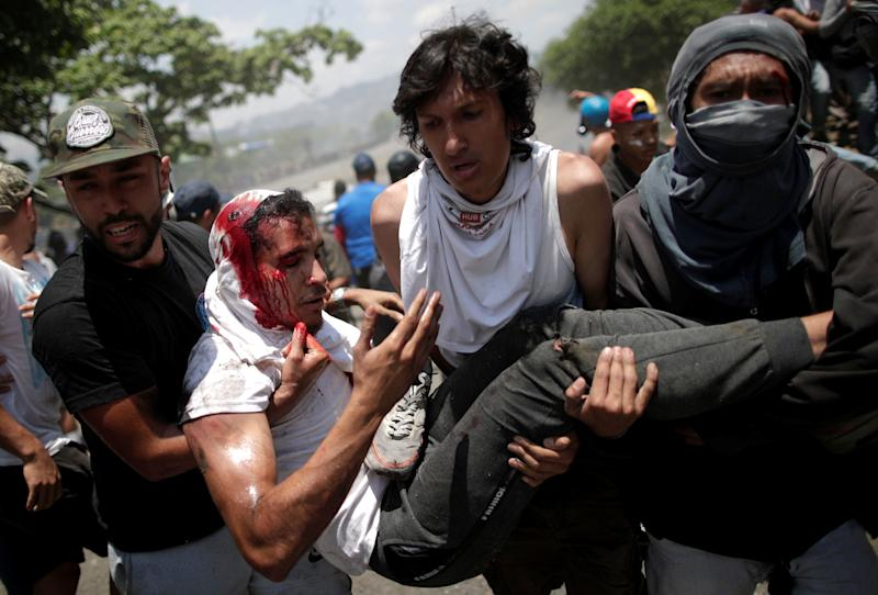 "An opposition demonstrator bleeds from his head as he is carried by fellow protesters after being run over by a Venezuelan National Guard vehicle on a street near the Generalisimo Francisco de Miranda Airbase ""La Carlota"" in Caracas, Venezuela April 30, 2019. (Photo: Ueslei Marcelino/Reuters)"