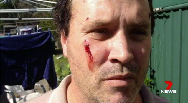 A man and four others were injured while trying to stop an elderly woman from being attacked by two dogs. Pictures: 7 News