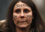 A demonstrator gathers outside New Scotland Yard in London, Sunday, March 14, 2021 during a protest over the abduction and murder of Sarah Everard and the subsequent handling by the police of a vigil honoring the victim. London's Metropolitan Police force was under heavy pressure Sunday to explain its actions during a vigil for Sarah Everard whom one of the force's own officers is accused of murdering. (AP Photo/Frank Augstein)