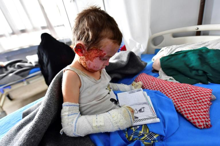 Five-year-old Mariam receives treatment at a hospital in Syria's northeastern Hasakeh province in 2019
