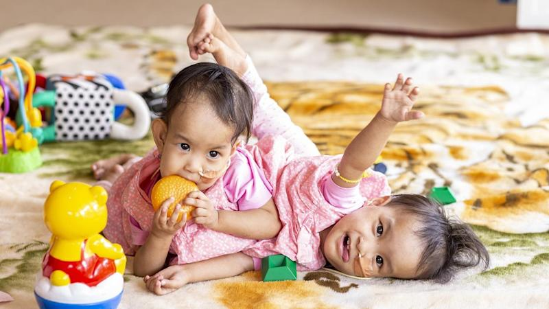 Conjoined Twins Separated In Successful Surgery