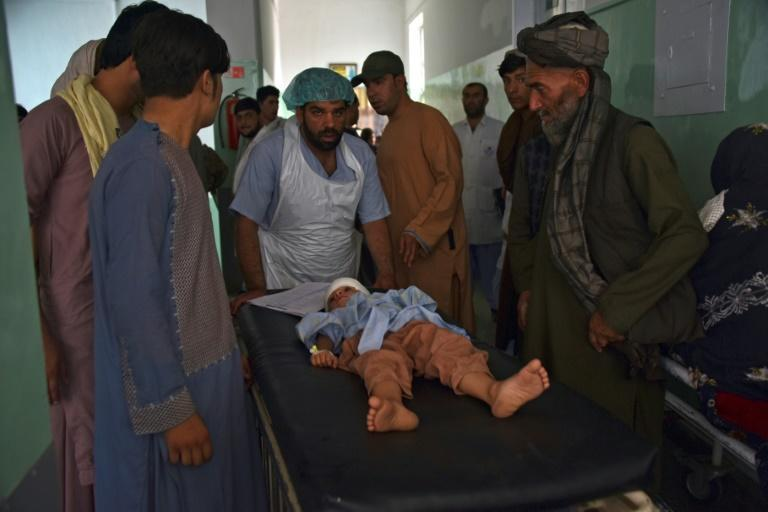 An injured child is being brought on a stretcher to a hospital after a car bomb attack in southern Kandahar, Afghanistan on July 6, 2021