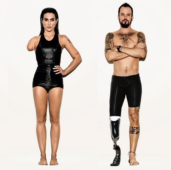 Vogue Brazil turns models into amputees to promote Paralympics