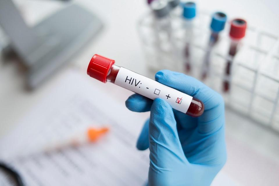 Diagnostician holding in hand a positive HIV test.