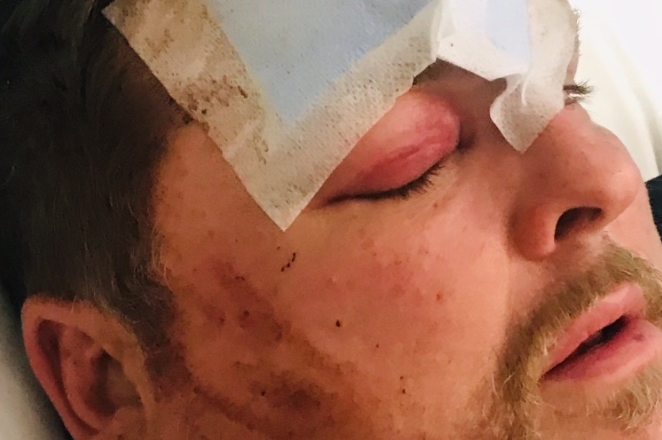 Pictured is a close up of Damien Cook's badly beaten face with a bruised eye and bandages on his head.