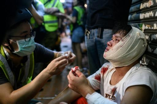 An injured man is attended to in the street after a clash during a protest in Hong Kong's Tsuen Wan district