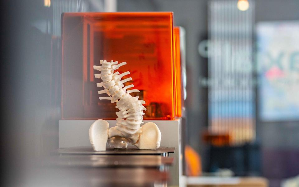 A 3D printed scan of a patient's body made by Axial3D - Axial3D