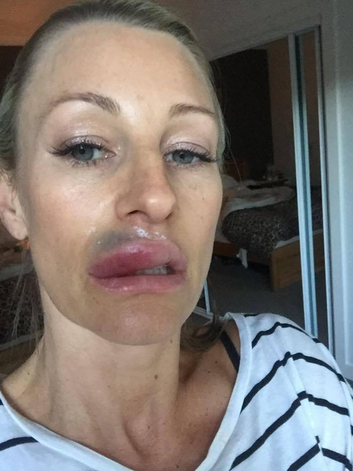 Sydney Mums Horror After Lip Fillers Go Badly Wrong