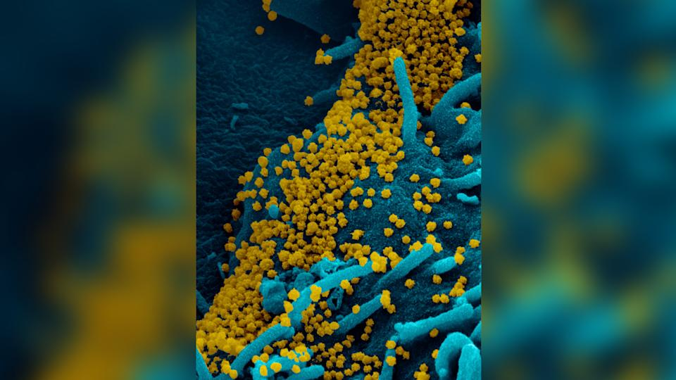 A scanning electron microscopy image of SARS-CoV-2 obtained from a woman with COVID-19 who was contagious for 70 days.