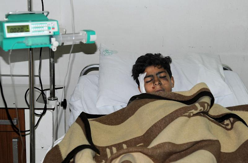 In this photo released by the Syrian official news agency SANA, an injured Syrian student, lies at a hospital bed after he was wounded when a mortar hit the al-Batiha school in al-Wafideen camp, about 25 kilometers (15 miles) northeast of Damascus, Syria, Tuesday Dec. 4, 2012. A mortar slammed into a ninth-grade classroom in the Damascus suburbs on Tuesday, killing 29 students and a teacher, according to state media, as the civil war closed in on President Bashar Assad's seat of power. (AP Photo/SANA)