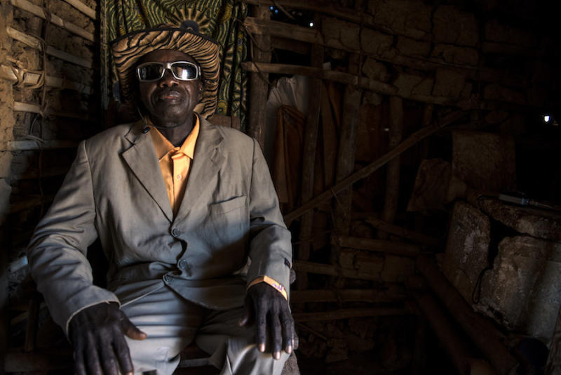 Bafimbo Baudoin, who has elephantiasis, still dresses to impress. (Neil Brandvold/DNDi)