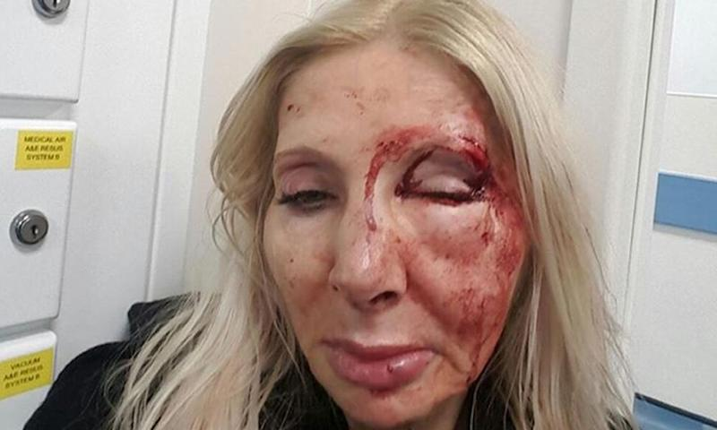 The Austrian woman who was attacked in north London.