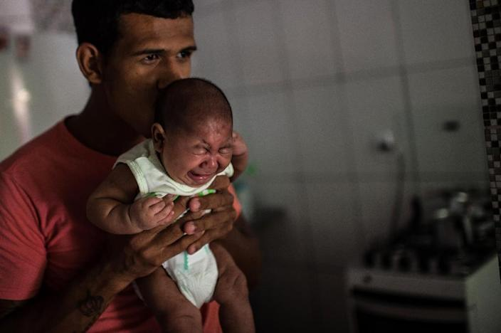 The mosquito-borne Zika virus has been linked to microcephaly -- a shrinking of the brain and skull -- in babies (AFP Photo/Christophe Simon)