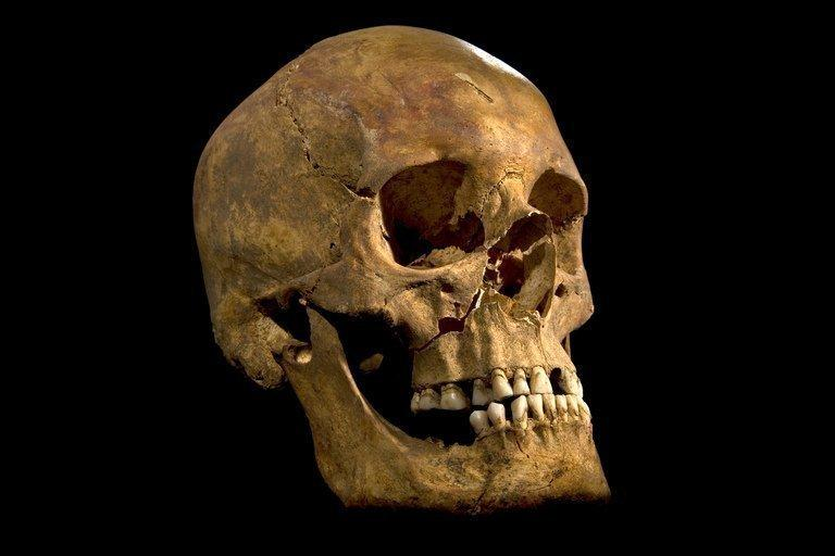 A picture released on February 3, 2013 shows King Richard III's skull, which was found underneath a carpark in Leicester