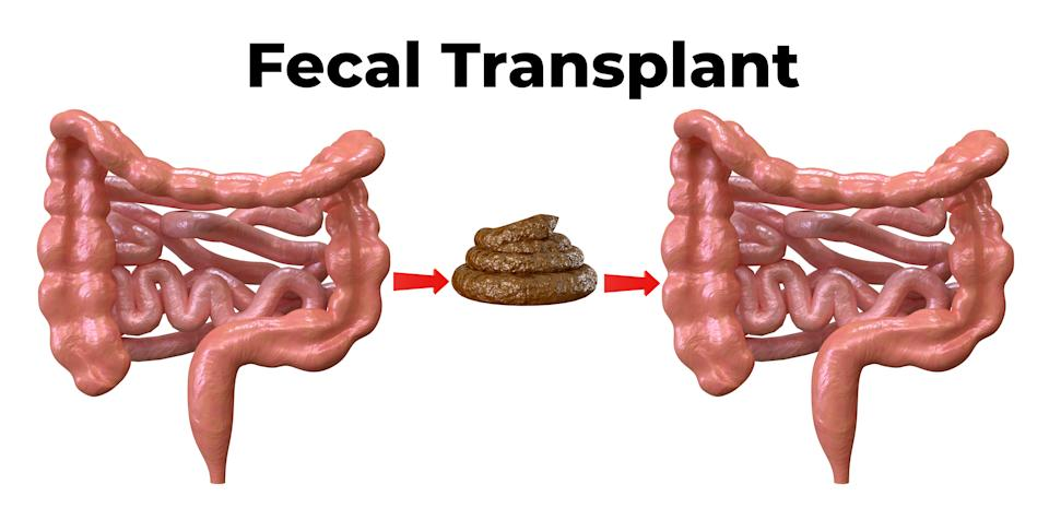 Fecal microbiota transplantation is a procedure in which a donor's feces are placed in the bowel of the patient with intestinal inflammation. 3D rendering