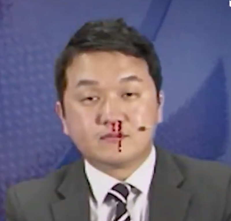 Korean sportscaster keeping his concentration through a nosebleed is something to behold