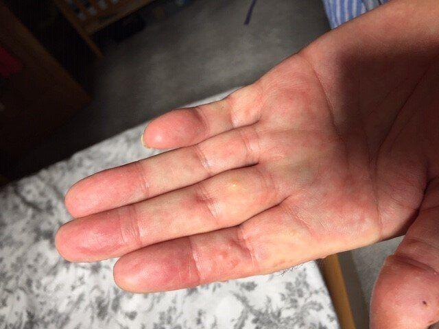 An example of Covid fingers (Photo: Covid Symptom Study)