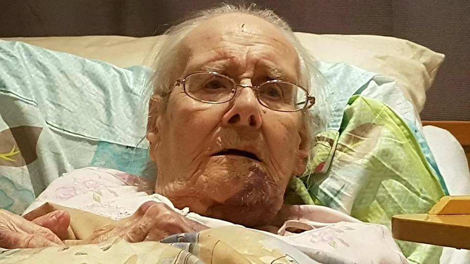 <em>Shocking – images show the horrific injuries Monica Holt suffered after she was attacked by a fellow resident at her care home (Pictures: SWNS)</em>
