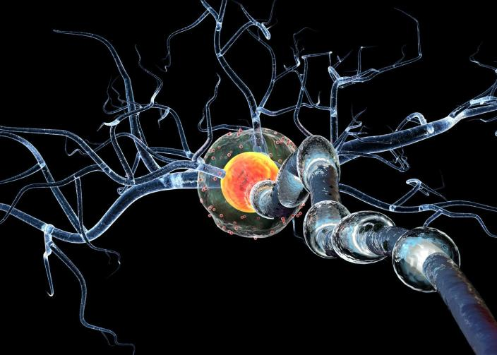 """<span class=""""caption"""">COVID-19 has been linked to neurological problems in those with severe disease.</span> <span class=""""attribution""""><a class=""""link rapid-noclick-resp"""" href=""""https://www.gettyimages.com/detail/photo/nerve-cells-concept-for-neurologic-diseases-tumors-royalty-free-image/477773184"""" rel=""""nofollow noopener"""" target=""""_blank"""" data-ylk=""""slk:Ralwel / Getty Images"""">Ralwel / Getty Images</a></span>"""