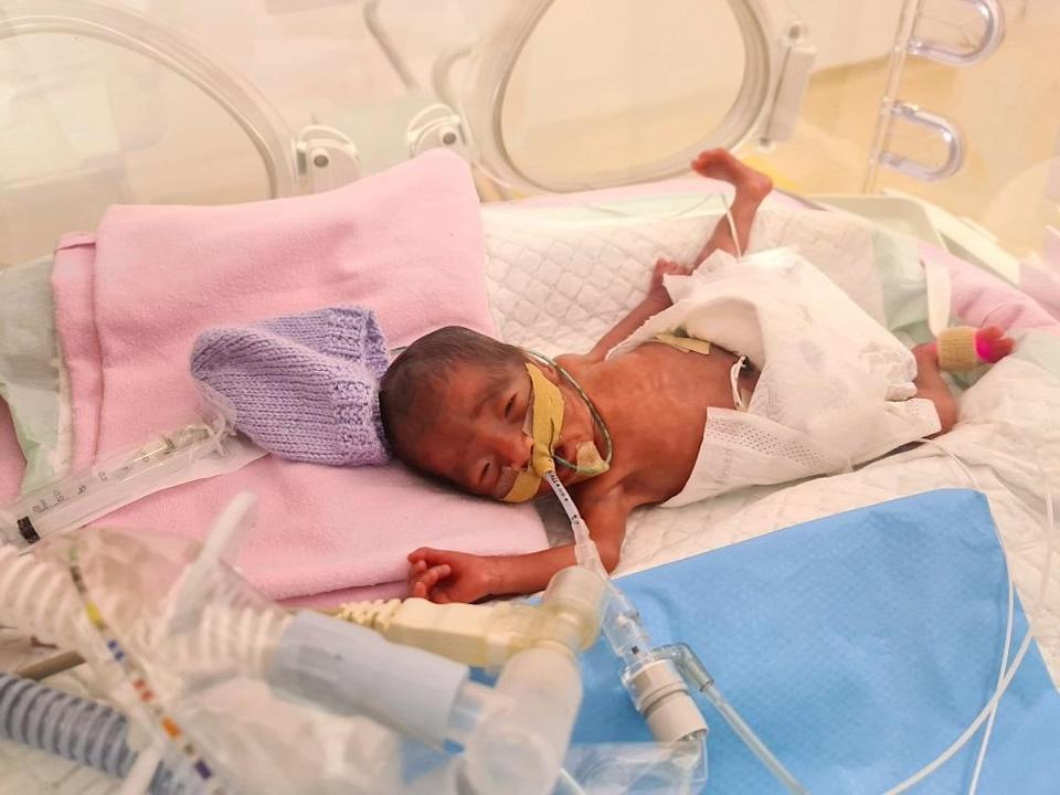 Micro preemie Eloise Ang Xuan Rui weighed only 670g at birth.  —  Picture courtesy of One Hope Charity & Welfare