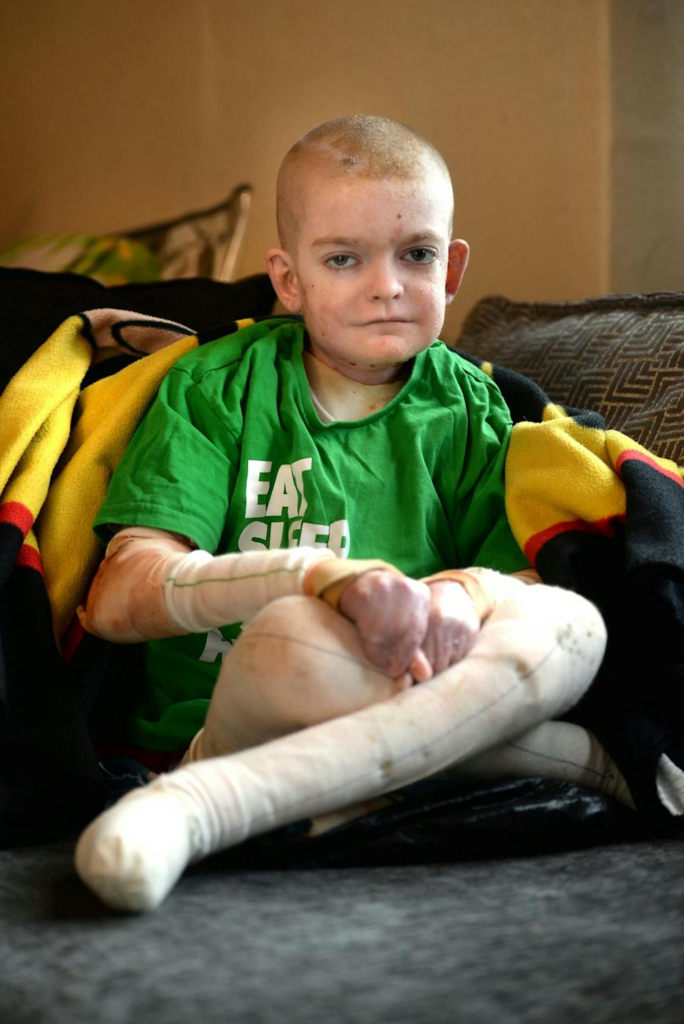 Rhys has been battling the skin condition since birth [Photo: SWNS]