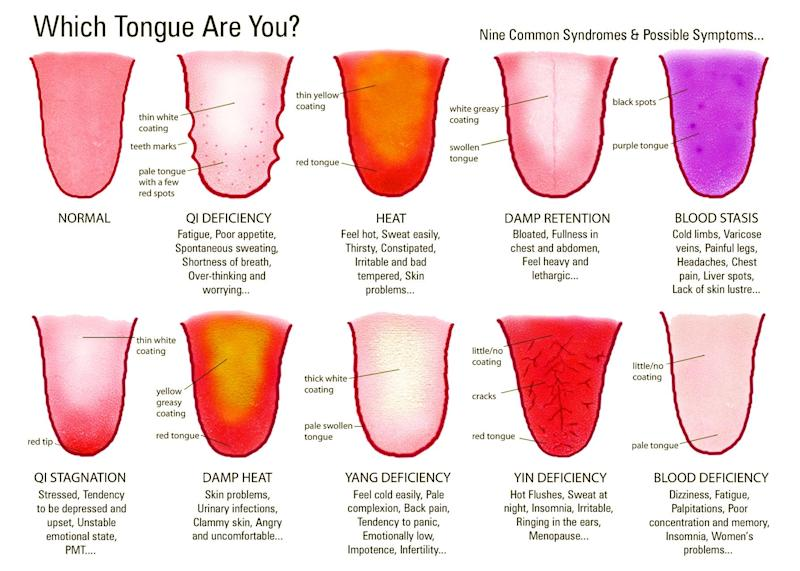 Tongue mapping (Image courtesy of AcuMedic Clinic London)
