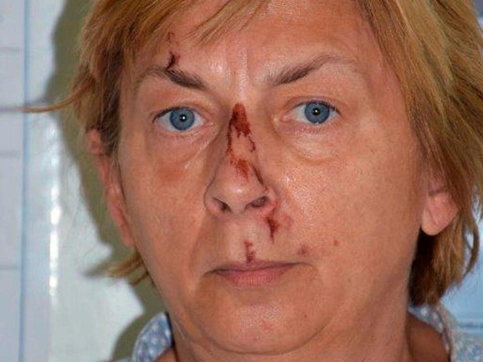 A woman was found with no memory and  cuts and bruises on her face on the Croatian island of Krk (Croatian Police/AP)