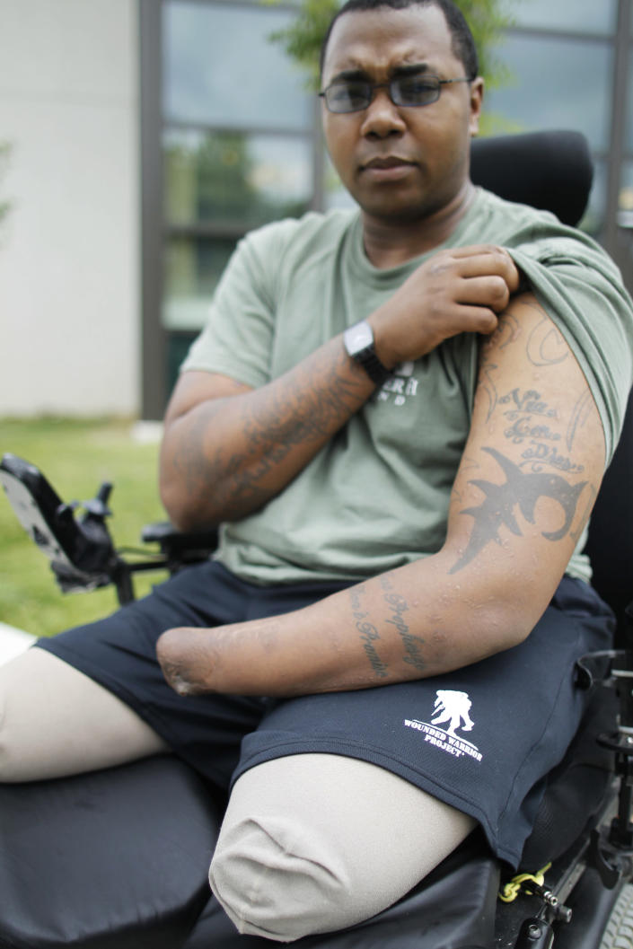In this Tuesday, May 22, 2012 photo, Marine Cpl. Larry Bailey II, of Zion, Ill., shows the tattoos on his arm at Walter Reed National Military Medical Center in Bethesda, Md. After tripping a rooftop bomb in Afghanistan in June 2011, the 26-year-old Marine remembers flying into the air, then fellow troops attending to him. Bailey, who ended up a triple amputee, expects to get a hand transplant this summer. A staggering 45 percent of the 1.6 million veterans from the wars in Iraq and Afghanistan are now seeking compensation for disabilities they say are service-related - more than double the 21 percent who filed such claims after some previous wars, according to top government officials. The new veterans have different types of injuries than previous veterans did, in part because improvised bombs have been the main weapon and because body armor and improved battlefield care allowed many of them to survive wounds that in past wars proved fatal. (AP Photo/Charles Dharapak)