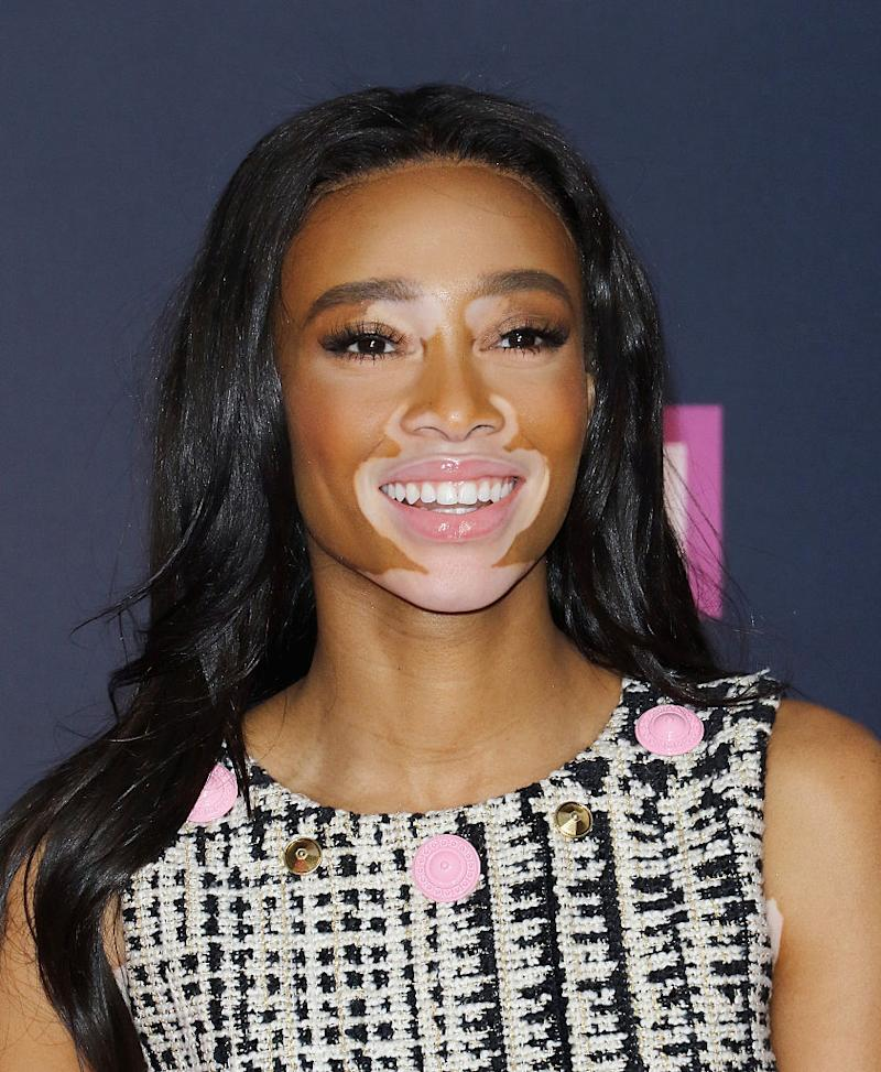 winnie harlow is a high fashion storm with her new hairstyle