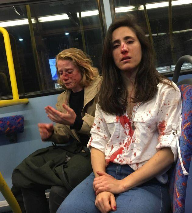 The two women after the attack (Melania Geymonat)
