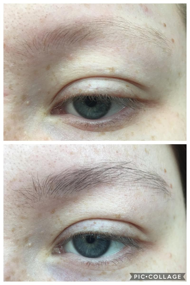 n7zdmmj You NEED To See This Insane Before And After RevitaBrow Picture