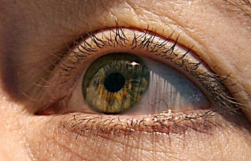 Researchers hope that eye exams could one day help screen people in their 40s and 50s for the possibility of later developing Alzheimer's disease long before symptoms appear
