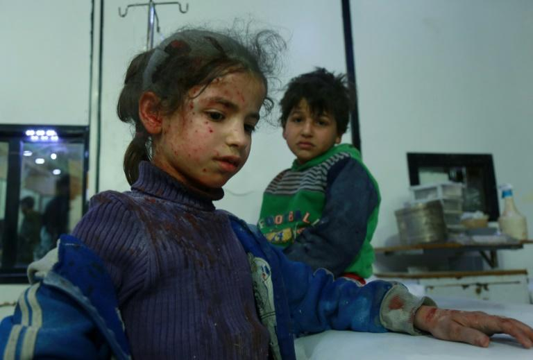 Wounded Syrian children await treatment at a makeshift hospital in the main Eastern Ghouta town of Douma after fresh air strikes on the rebel enclave on February 23, 2018