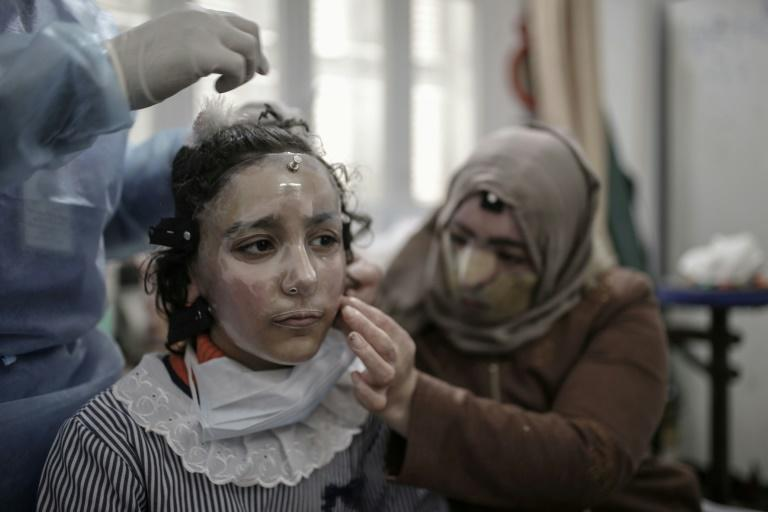 Palestinian schoolgirl Maram al-Amawi has been fitted with a 3D-printed transparent face mask to help heal her severe facial burns