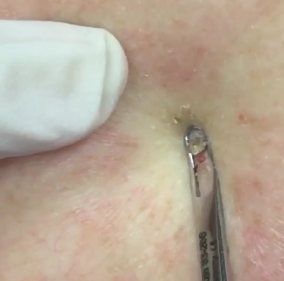 One of the thousands of pimples Dr Lee has popped in her time on the job. Photo: Dr Pimple Popper Instagram