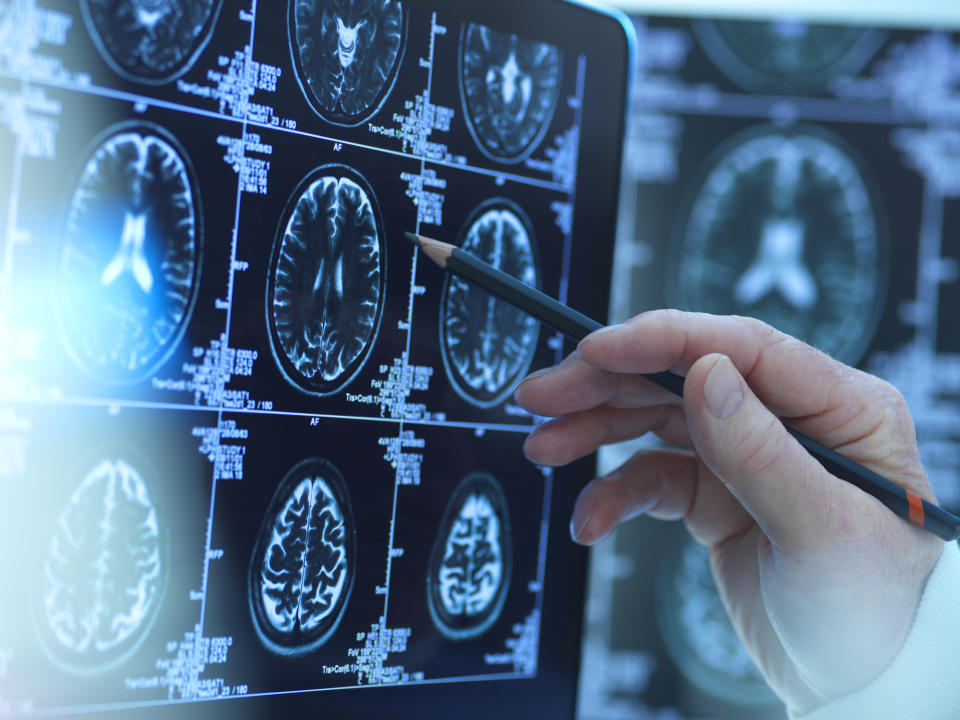 Scientists observed brain damage, strokes and central nervous system infections. (Stock, Getty Images)