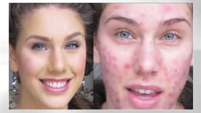 Acne Scarred Teen Model Undergoes Amazing Daily Makeup Transformation