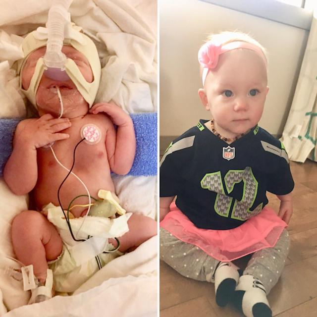 This is my daughter, Norah, who was born onJan. 15, 2017, at 35 weeks old. She stopped breathing on her own when she was born five weeks early and was on CPAP, and then intubated until she could do it herself. She is now 10 months old and doing great!<br><br><i>--Meighan Zieske</i>