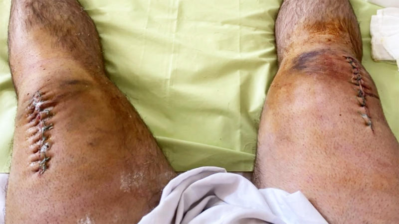 Alexander Sedykh, pictured here showing off his post-surgery scars.