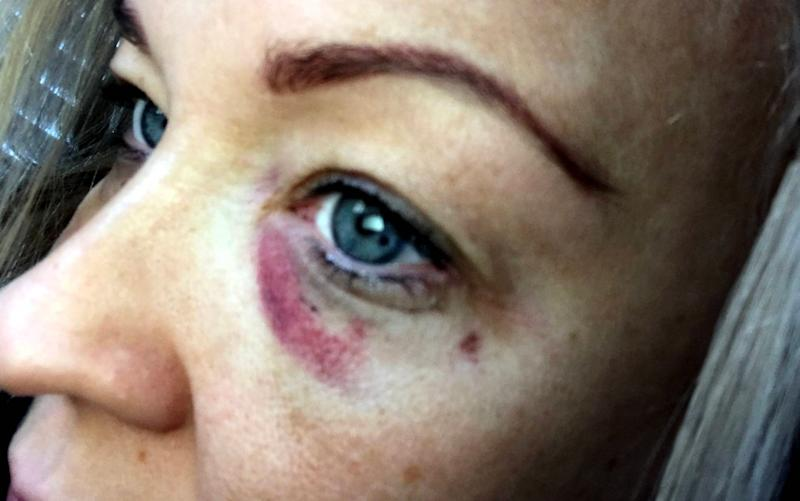 Amy Tombs, 36, has branded restorative justice a joke after receiving a 'childlike' apology from her attacker - (c) North News & Pictures ltd
