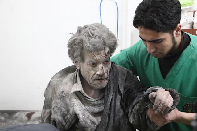 <p>A wounded Syrian man receives medical treatment at a hospital after Assad Regime carried out airstrikes over Arbin town of the Eastern Ghouta region of Damascus which is a de-escalation zone in Syria on Feb. 8, 2018. (Photo: Dia Al-Din/Anadolu Agency/Getty Images) </p>