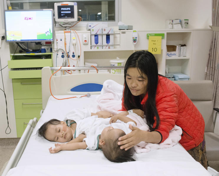 This photo provided by RCH Melbourne Creative Studio, shows the 15-month-old girls and their mother before surgery at the Royal Children's Hospital Melbourne, Australia Friday, Nov. 9, 2018. Surgeons in Australia have begun separating the conjoined twins from Bhutan in a delicate operation expected to last most of the day. (RCH Melbourne Creative Studio via AP)