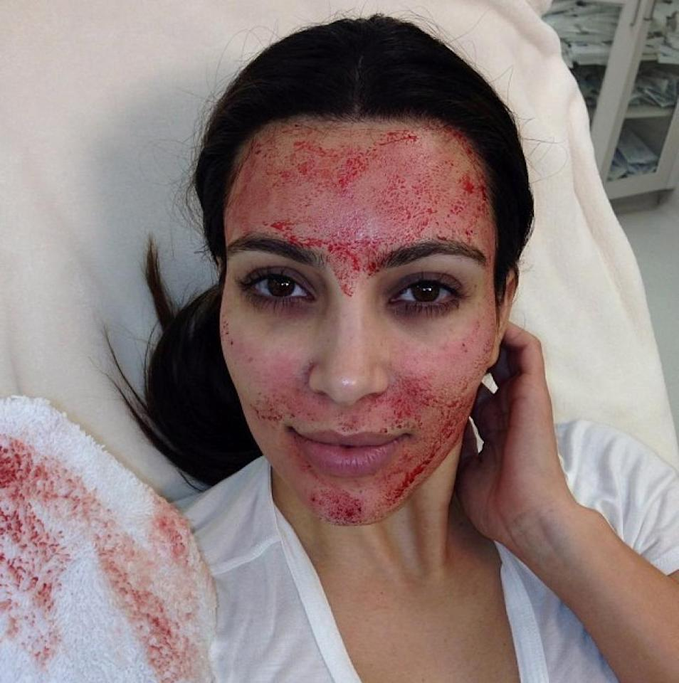 "Vampire facial: Leave it to Kim Kardashian to start a cult beauty trend. The reality star sent chills down our spines when she posted this picture of herself getting a ""vampire facelift."" The procedure involves extracting the plasma from your own blood and injecting it back into your face. (Instagram/kimkardashian)"